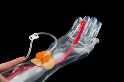 Dispositif médical (bras) conçu à l'ISIFC