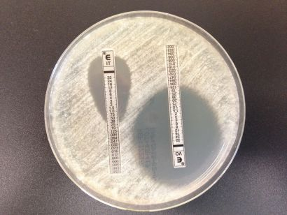 Comment les bactéries et champignons deviennent résistants?
