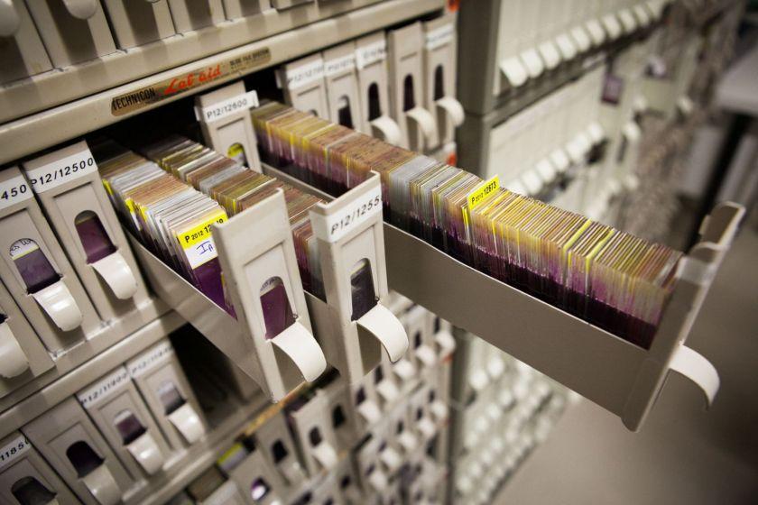 Des étagères à petits tiroirs, certains ouverts, dans lesquels on voit des lames histologiques.