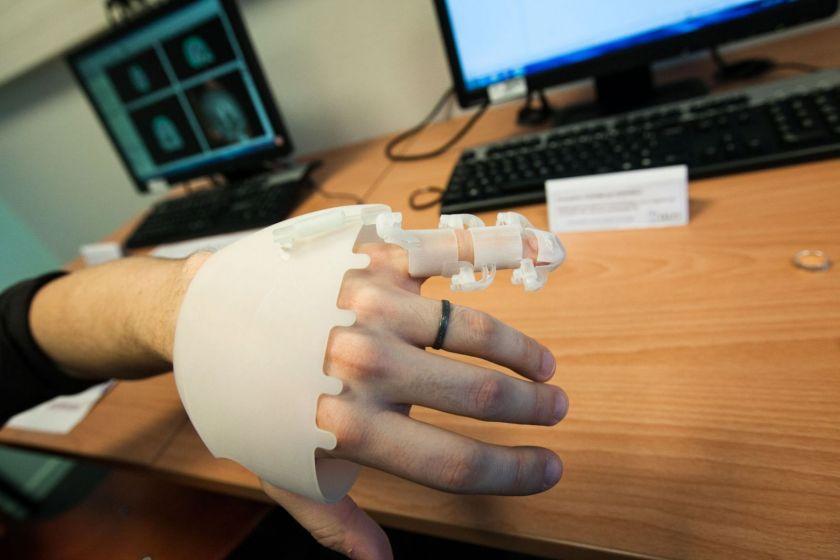 Une main équipée d'un nouveau modèle d'attelle.