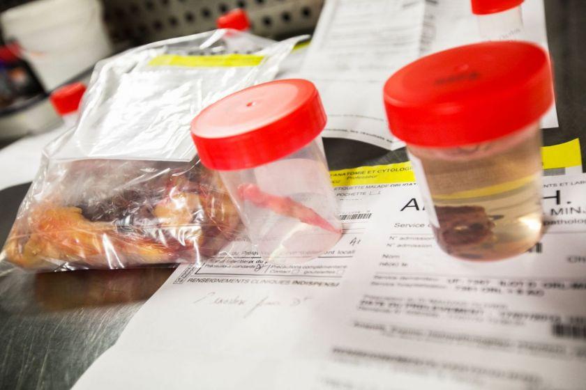 Divers prélèvements biologiques dans un sac et des bocaux, posés sur des papiers.