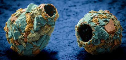 Vue en microscopie électronique à balayage d'amibes à thèque