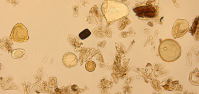 Grains de pollen grossis au microscope