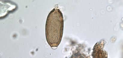Photo de parasite au microscope
