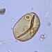 vue microscopique d'un pollen de céréale